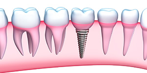 Irving, TX dentist explains dental implant treatment to replace missing teeth