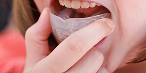 Sink into the benefits of mouthguards custom-made by your dentist in Irving, TX